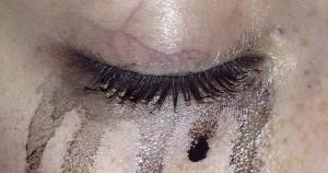 teary_eye