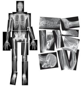 skeleton-transplant